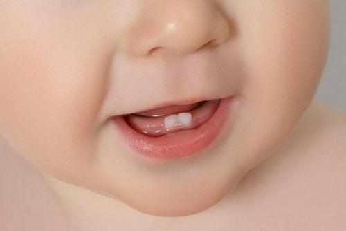 La dentición en los bebés es un proceso que puede causar varias molestias.