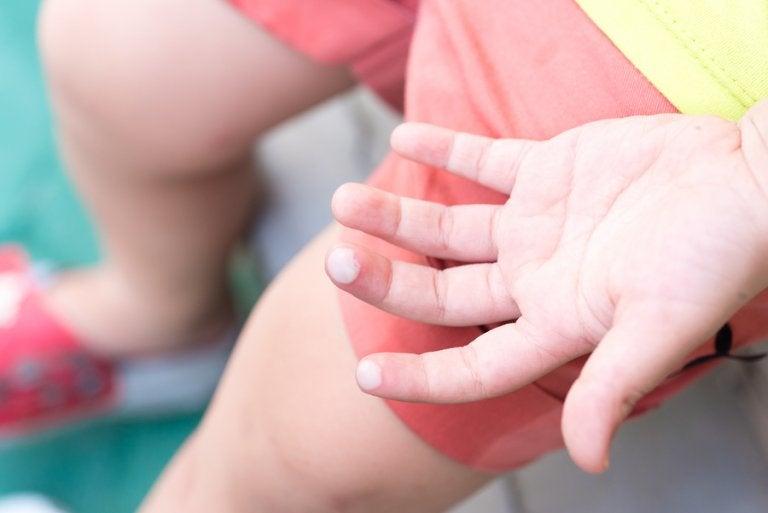 ¿Cómo curar las ampollas de los niños?
