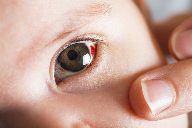 ¿Qué son las manchas rojas en los ojos del bebé?