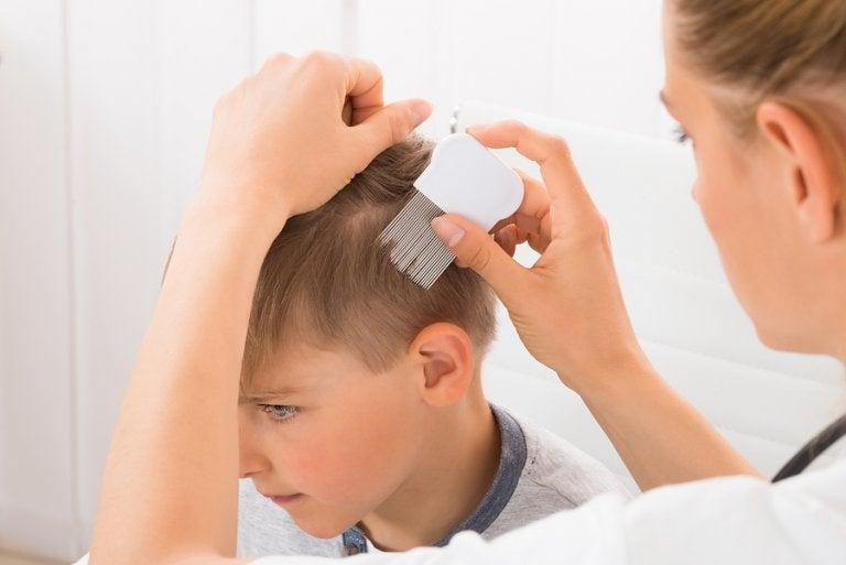 4 remedios contra la psoriasis en niños