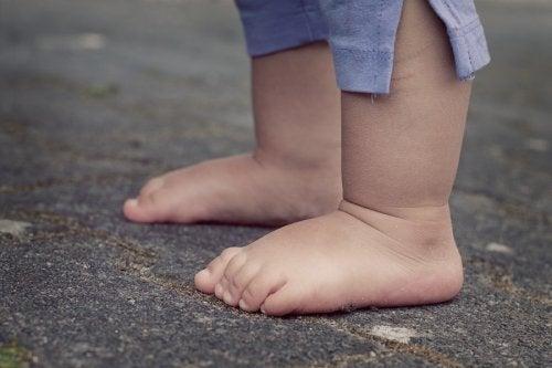 Acondroplasia en niños