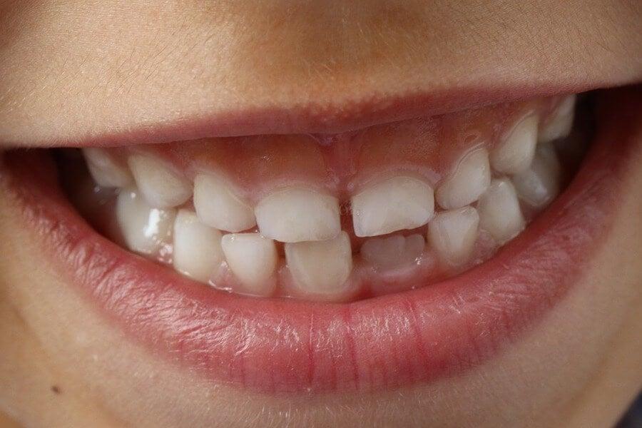 dientes-caries-ninos