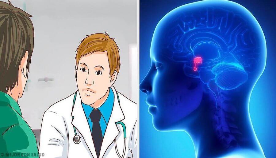 glandula-pituitaria-