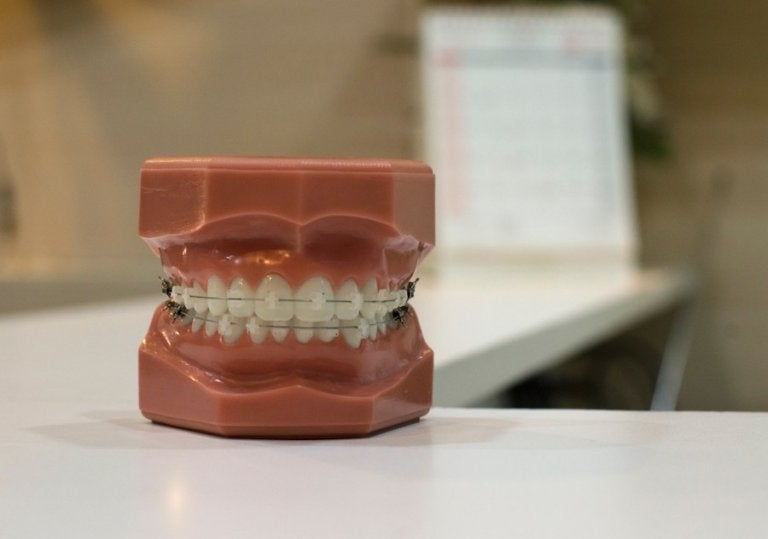 Tipos de ortodoncia para niños: removibles y fijos