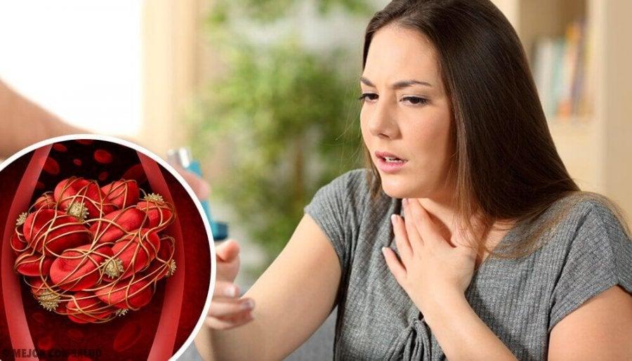 acidez y vomitos con sangre en el embarazo