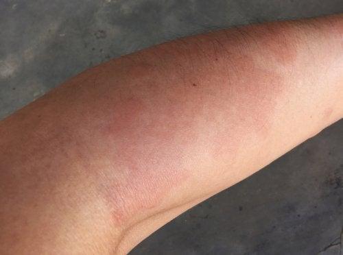 Brazo de una persona con lupus sistémico.