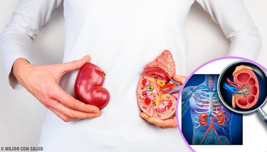 Cáncer de riñón en niños
