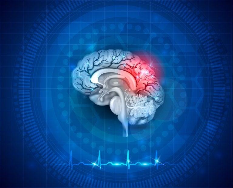 ¿Qué es el daño cerebral adquirido?