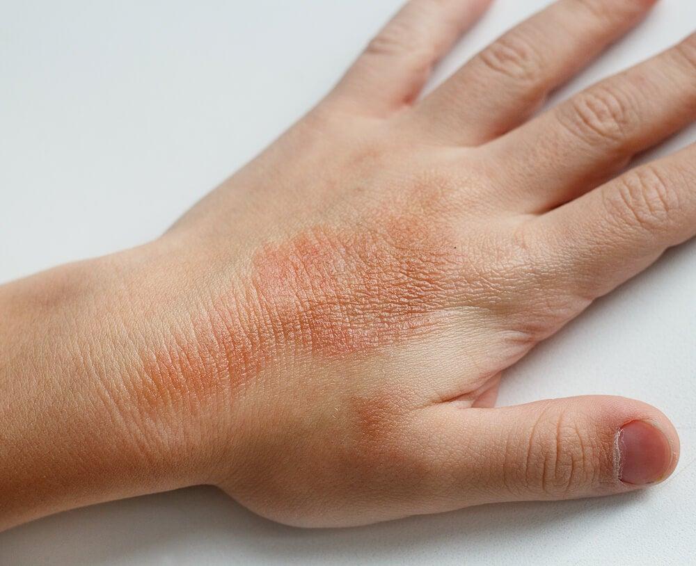Dermatomiositis infantil, una de las dermatitis en niños.