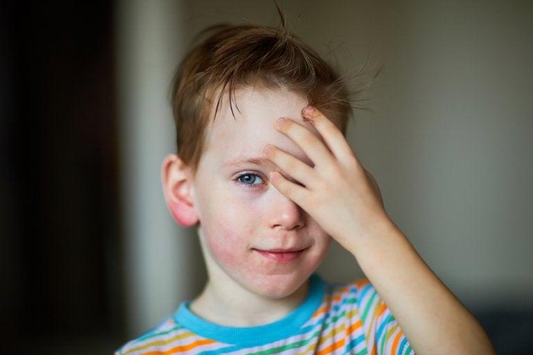 La dermatomiositis infantil