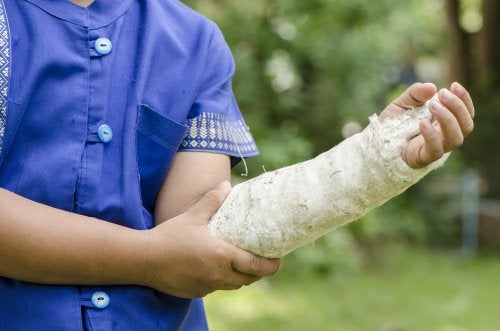 Niño con el brazo escayolado debido a una lesión deportiva y con signos posibles de tener artrosis infantil.