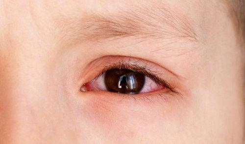 punto rojo en el ojo tratamiento
