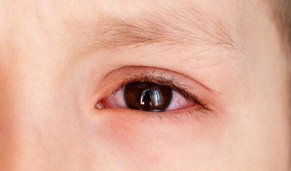 Derrames oculares en niños