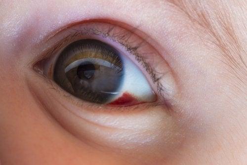 Que significa una mancha roja en un ojo