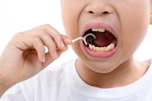 Fluorosis dental en niños.