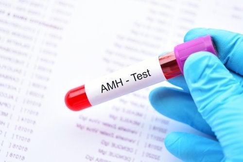 ¿Qué es la hormona antimülleriana?