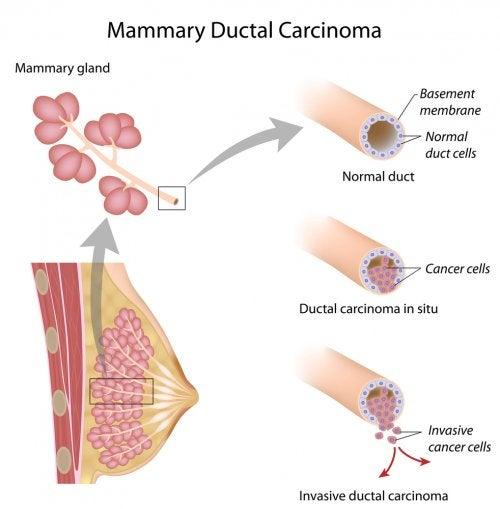 Biología del cáncer de mama: origen y tipos.
