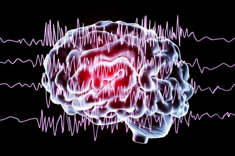 Episodios paroxísticos no epilépticos en niños