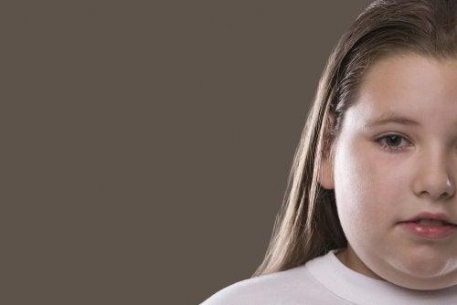 Consecuencias psicológicas del sobrepeso en los niños
