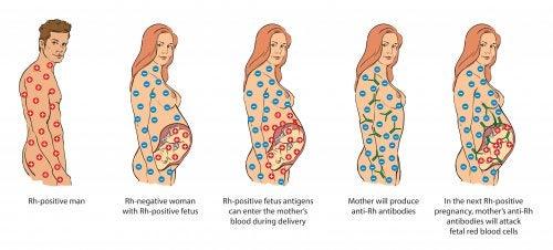 Infografía Rh de la madre, el padre y el bebé: incompatibilidad de Rh en el embarazo.