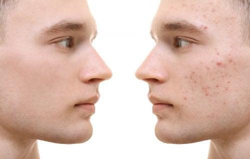 Existen varios tipos de acné y no todos tienen el mismo tratamiento.