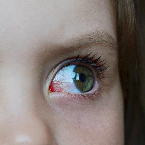Niño con ojo rojo e inflamado como síntoma de un posible glaucoma infantil.