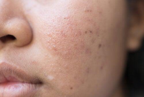 Alimentación y acné: lo que comes también es importante