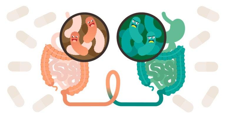¿Qué es el trasplante fecal y cuándo se recomienda?