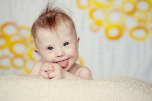 Síndrome de Down y lactancia materna
