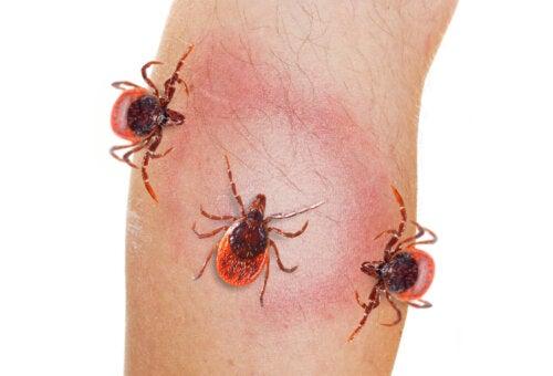 Eritema causado por la picadura de una garrapata, uno de los síntomas de la enfermedad de Lyme.
