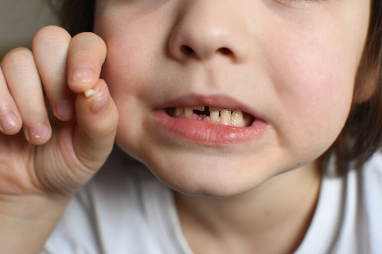 Golpes en los dientes de leche, ¿qué hacer?