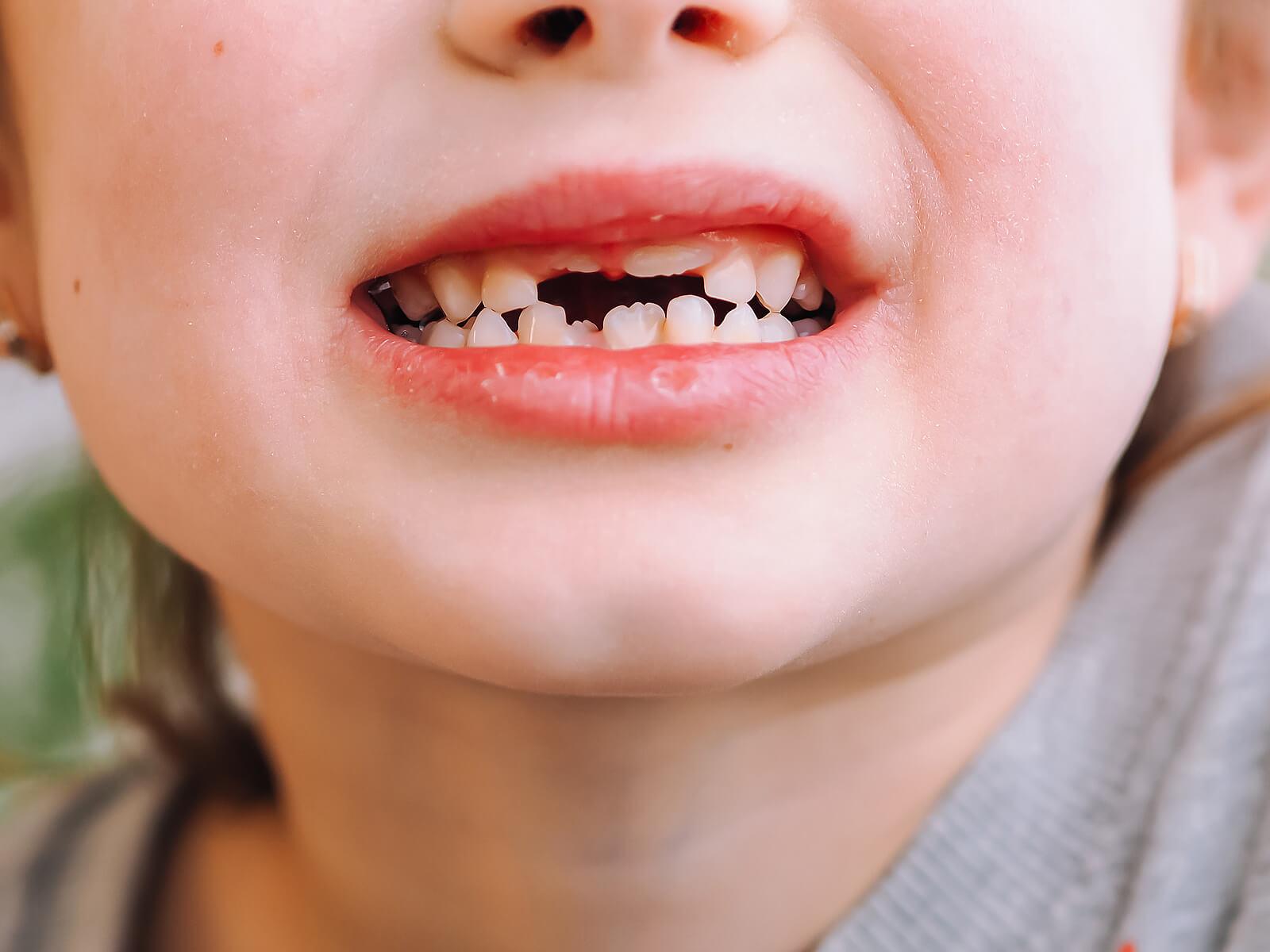Niño enseñando sus dientes de leche tras un golpe.