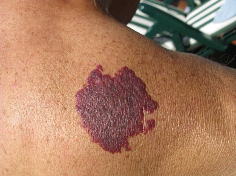Mancha púrpura en la piel.