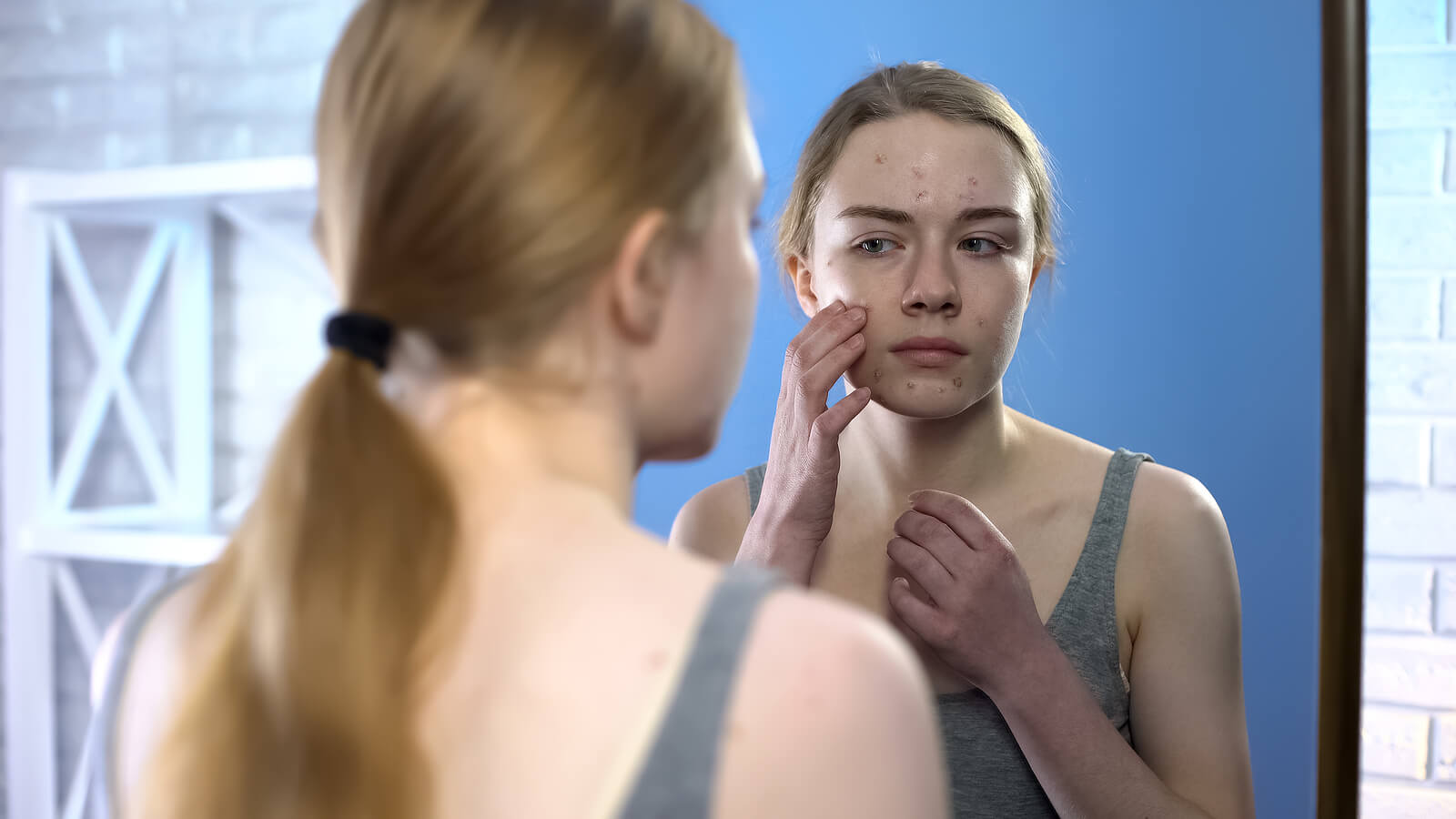 Chica adolescente con acné juvenil.