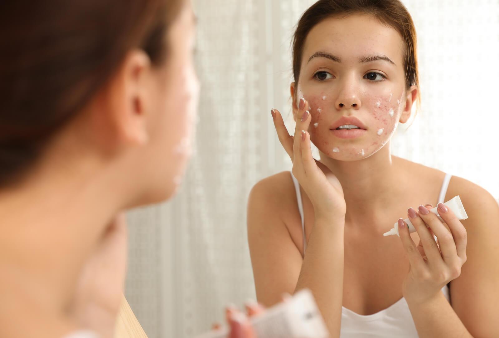 Chica adolescente usando un tratamiento para el acné juvenil.