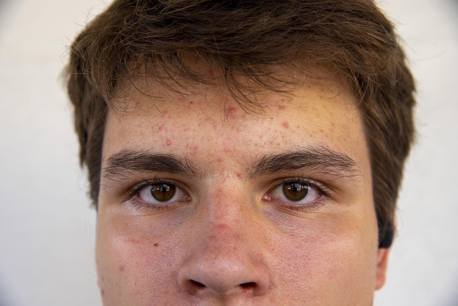 Chico adolescente con acné juvenil.
