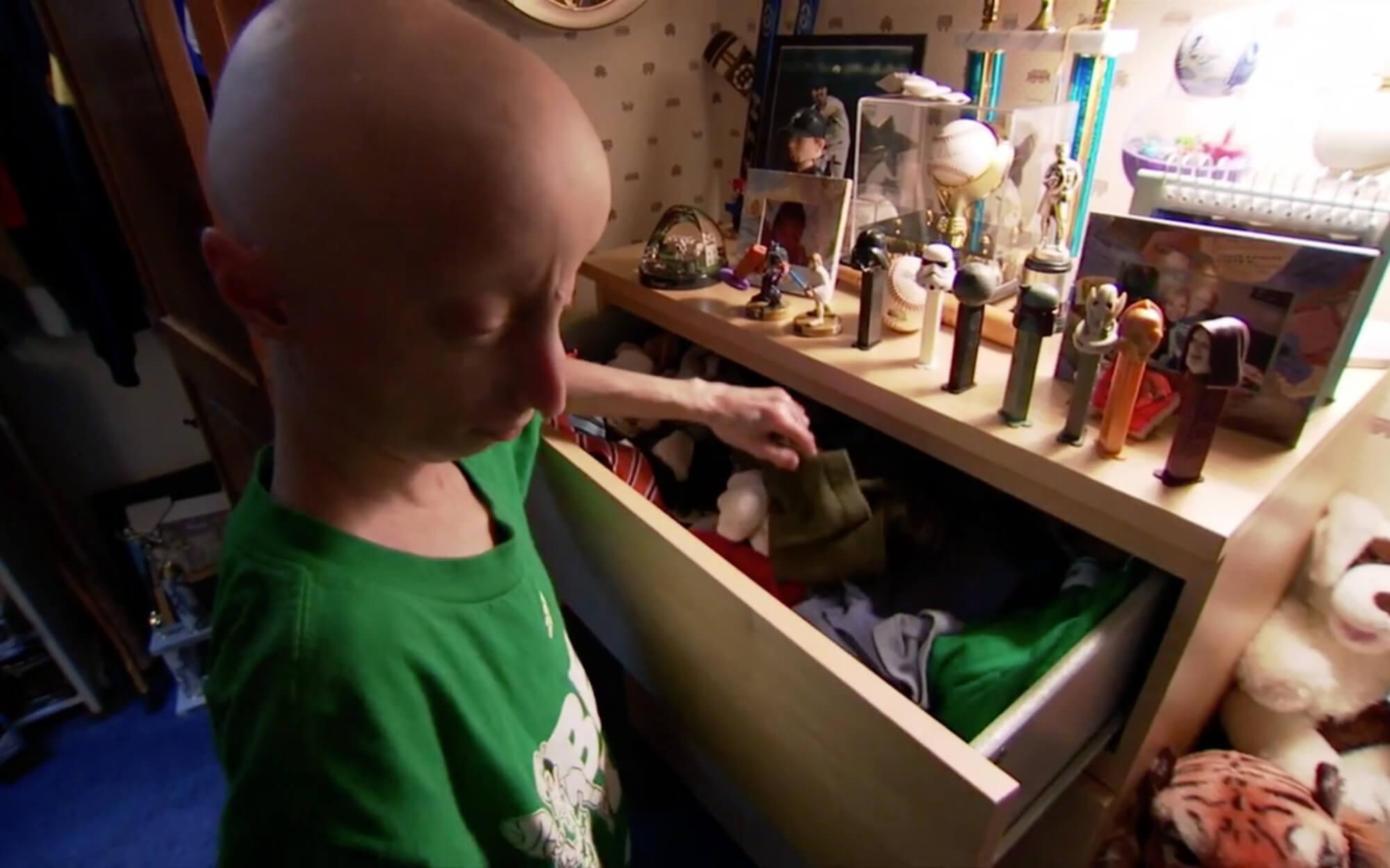Imagen extraída del documental sobre el síndrome de progeria.