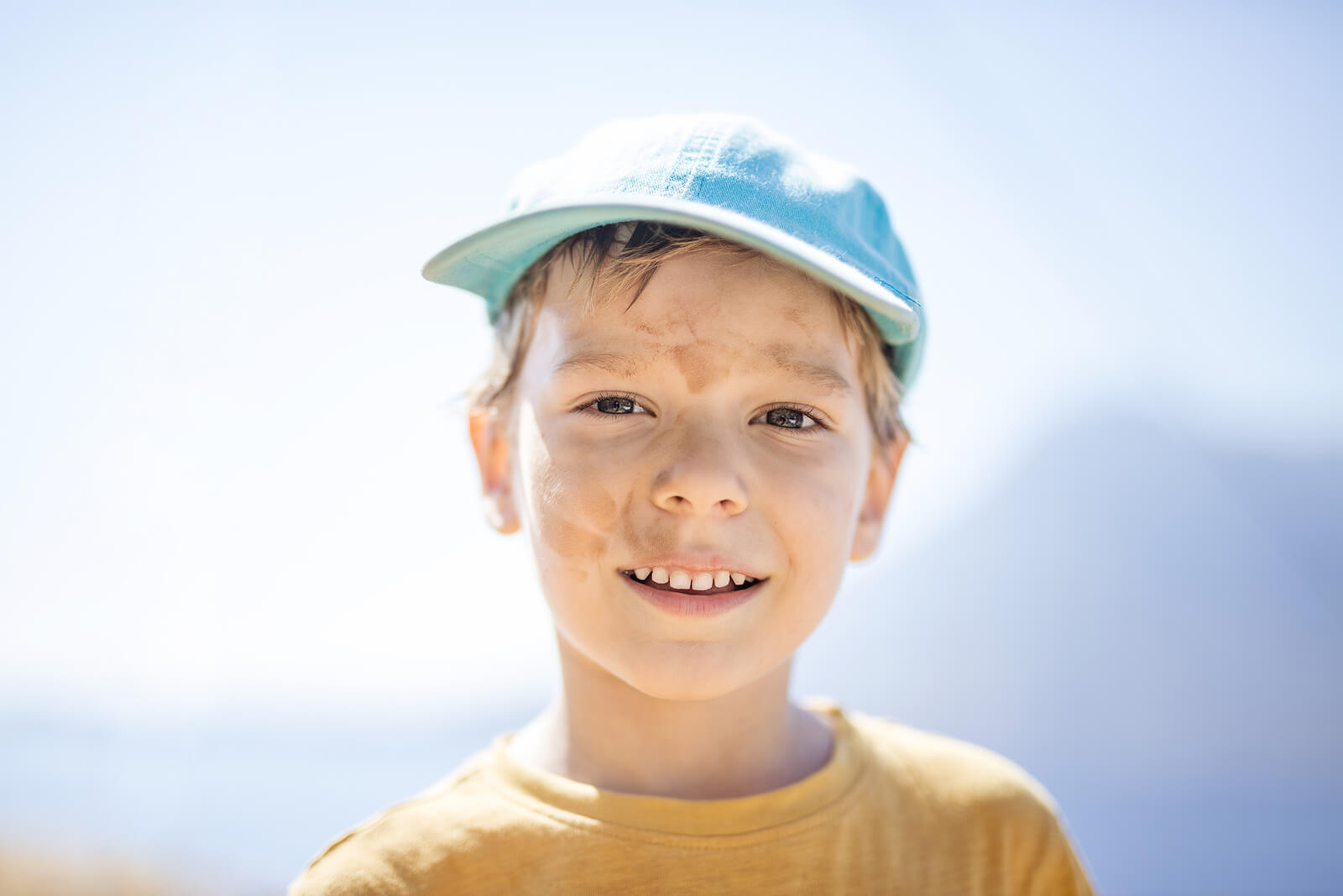 Niño con pitiriasis alba protegiéndose del sol con una gorra.
