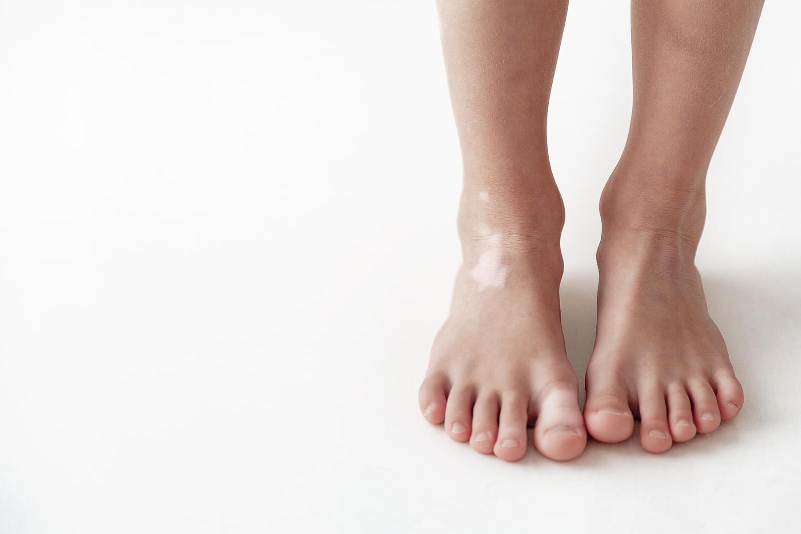 Pitiriasis alba: una enfermedad de la piel frecuente en niños