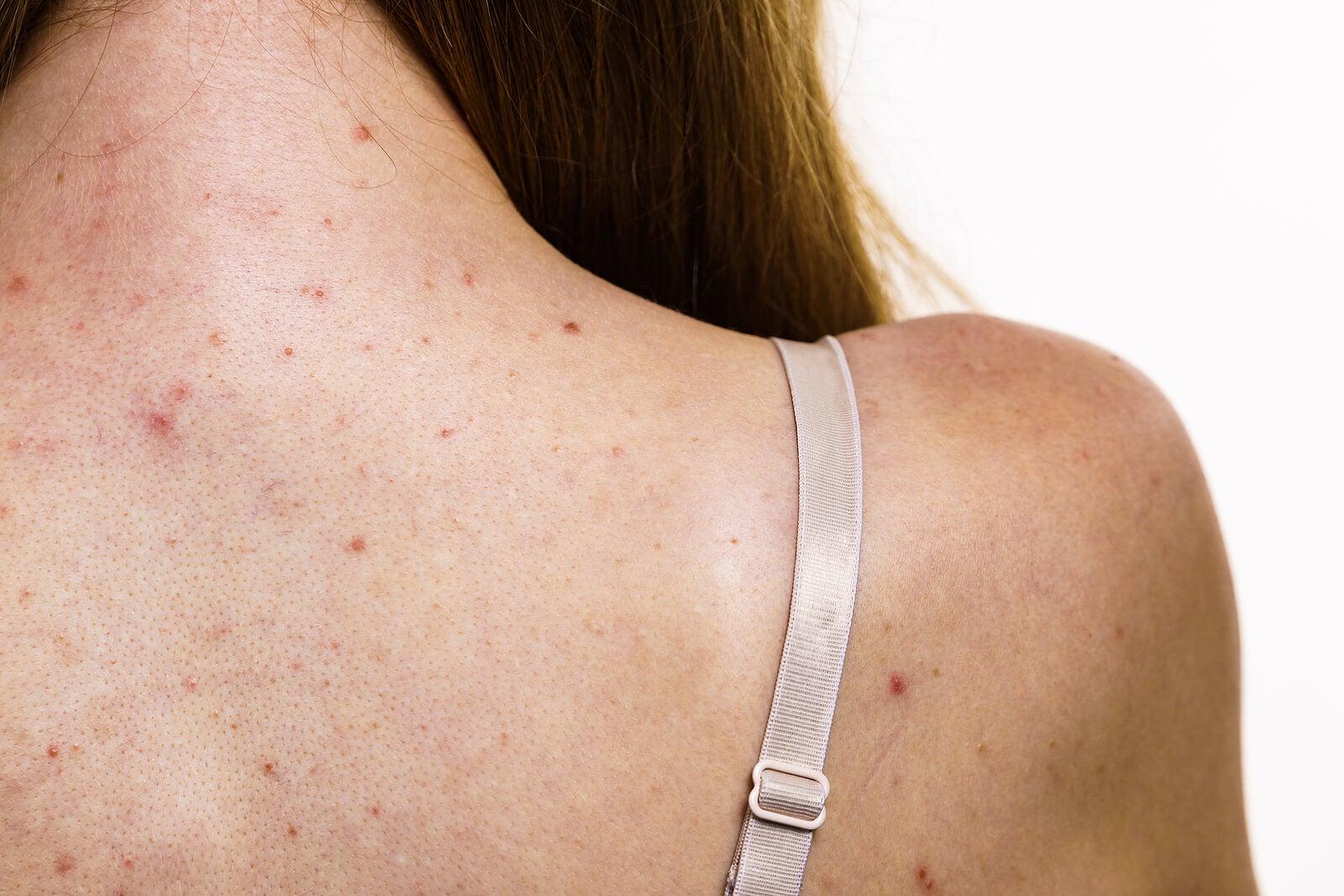 Adolescente con acné en la espalda, una de las dermatosis del adolescente más comunes.