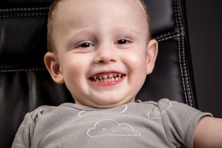 7 mitos sobre las caries infantiles