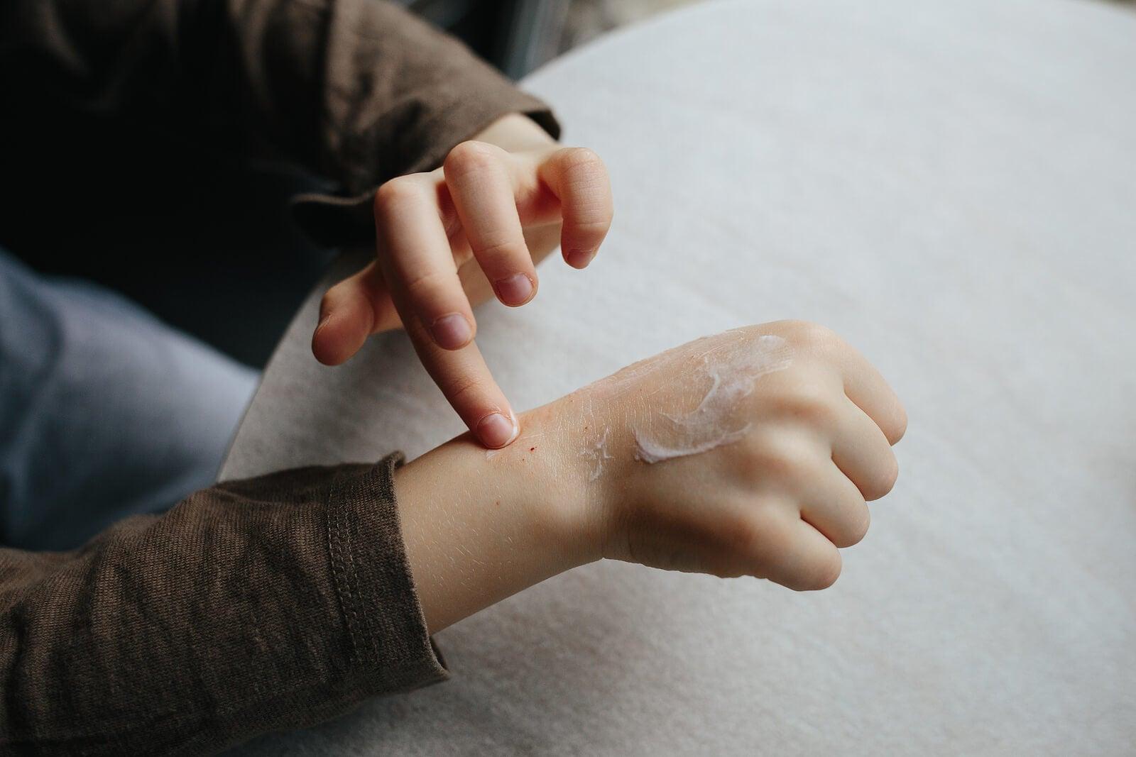 Niño aplicando cremas para la dermatitis atópica.