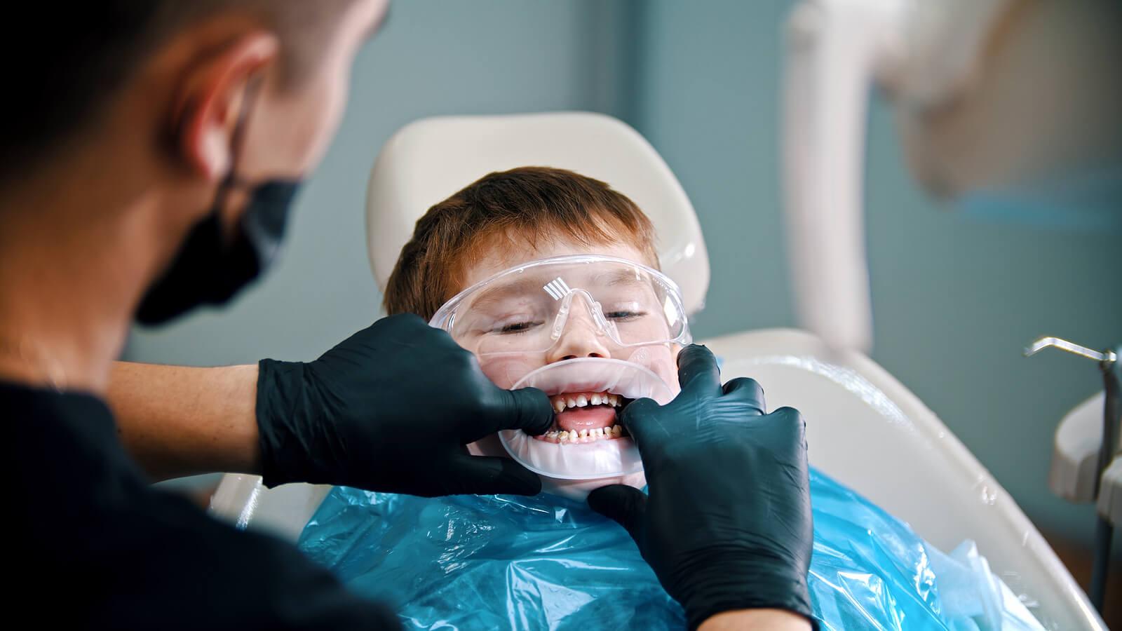 Niño en el dentista al que le están haciendo un sellado de dientes.