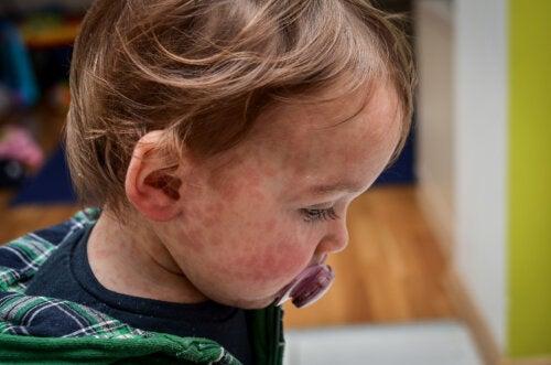 Tipos de dermatitis en niños
