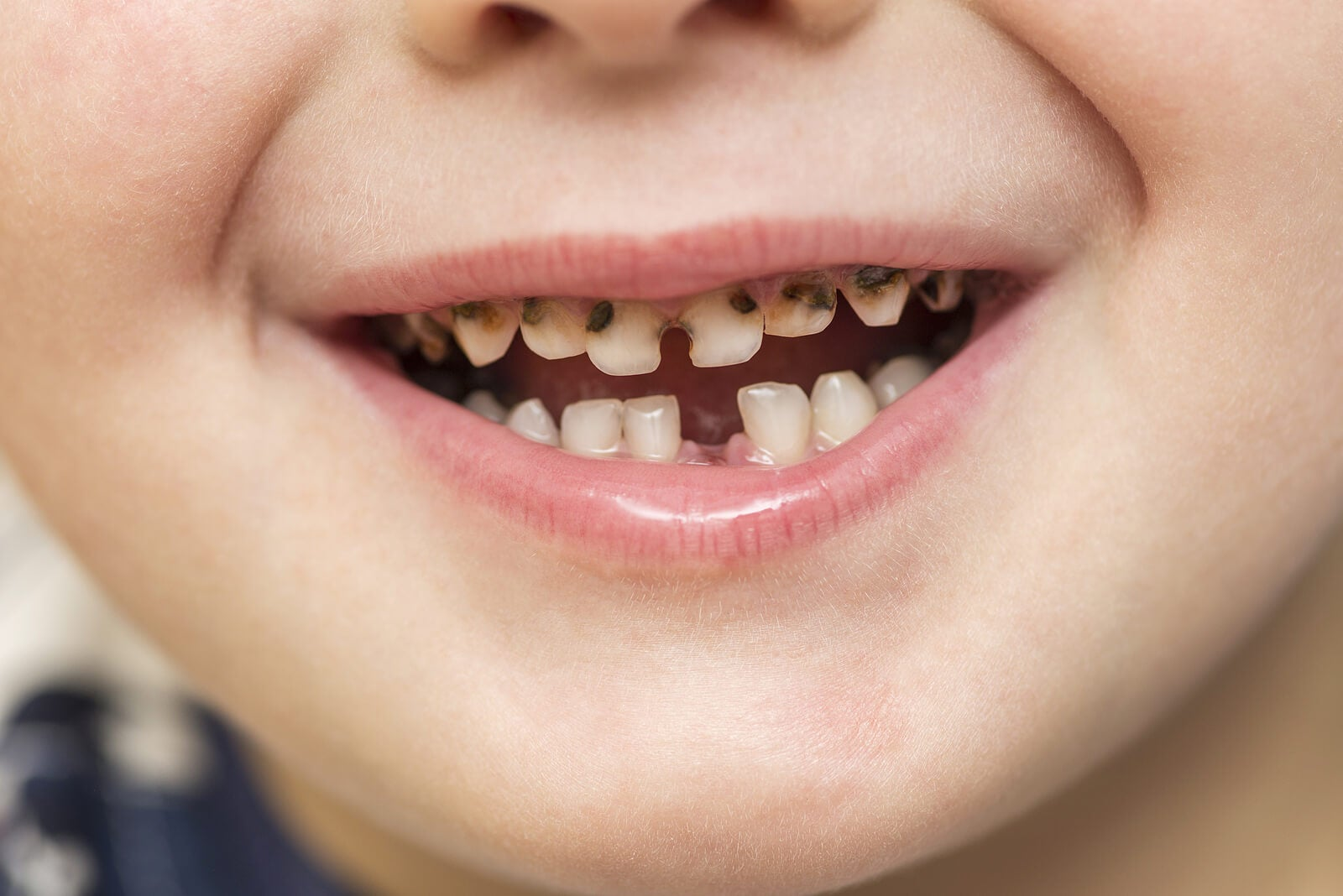 Niño con la boca llena de caries de la infancia temprana.