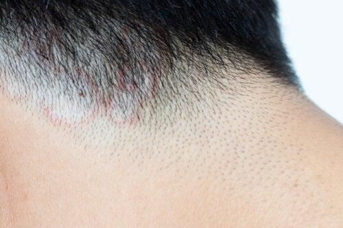 10 problemas de cabello en niños