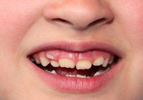 Apiñamiento dental en niños: ¿cómo se corrige?