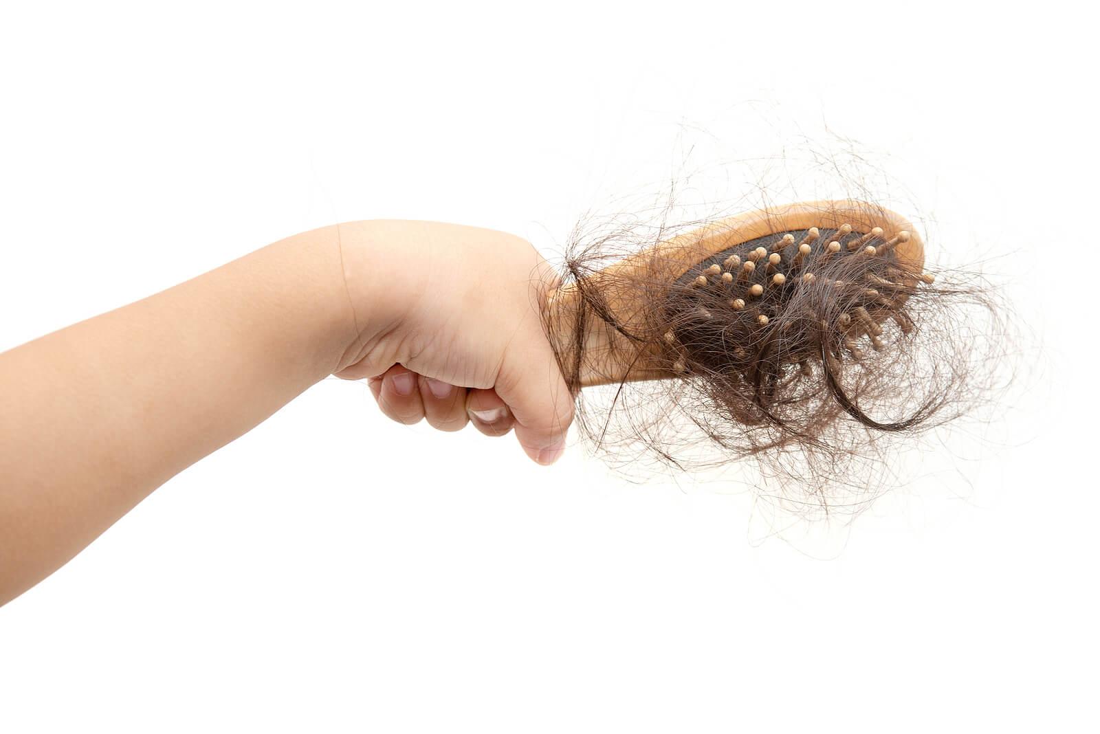 Cepillo leno de mechones debido a la alopecia en niños.