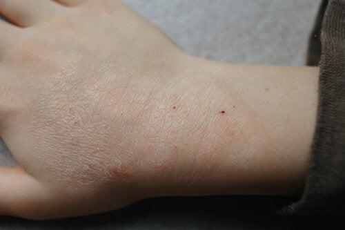 Micosis cutáneas en los niños