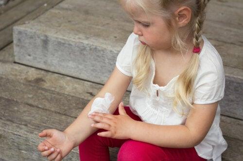 Las mejores cremas para la dermatitis atópica en niños